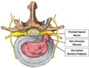 Illustration of a herniated causing a pinched nerve.