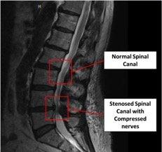 MRI of the lumbar spine.