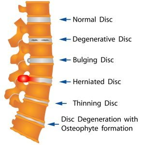 Illustration of Disc Disorders in Spine