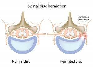 Illustration of a Spinal Disc Herniation Compared to a Normal Disc