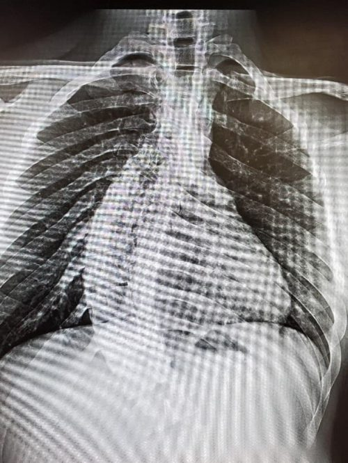 X-Rays of patient with scoliosis