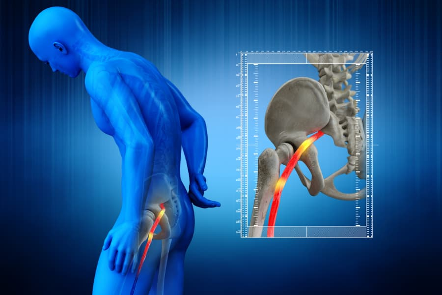 pinched sciatic nerve in lower back of 3D human rendering