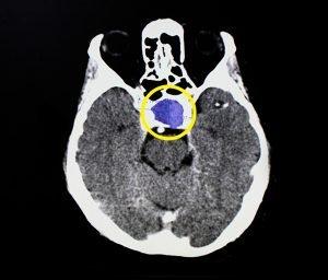 MRI of a pituitary tumor.