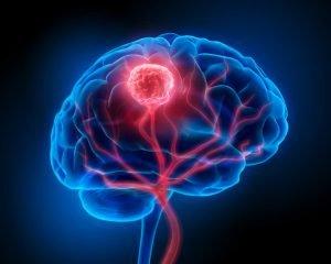 cnso brain tumor symptoms